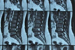 Phoebe's MRI 2